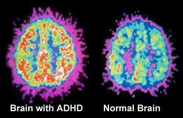 adhd-brain-vs.-normal